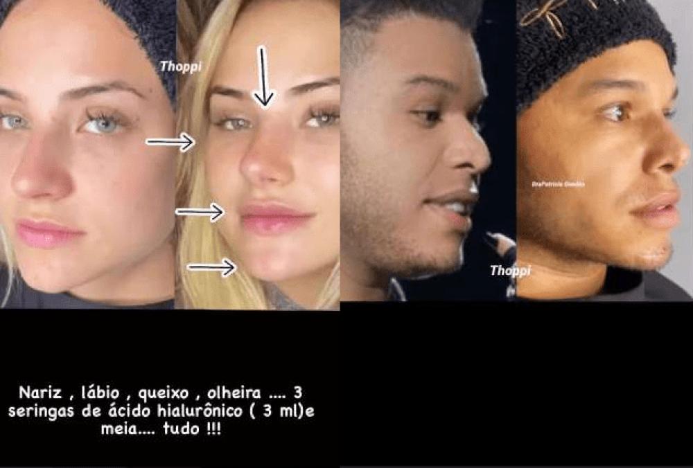 Antes e depois de Gabi Martins e Tierry (Reprodução)